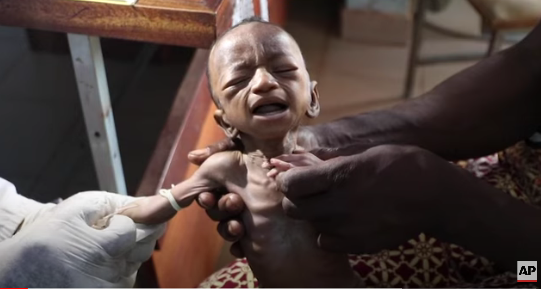COVID-19 Causing Large, Tragic Child-Hunger Increases Worldwide; UN Sounding the Alarm